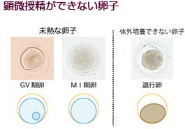 培養室から顕微授精ができない卵子