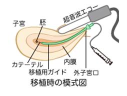 培養室から移植時の模式図