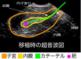 培養室から移植時の超音波図