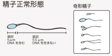 培養室から精子正常形態