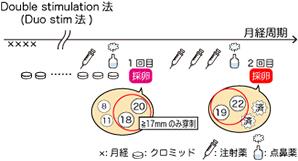 卵巣機能低下Double stimulation法(Duo stim法)