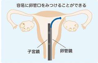 FT(卵管鏡下卵管形成術)子宮鏡を併用イメージ