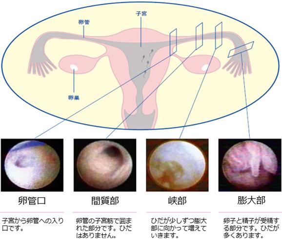 FT(卵管鏡下卵管形成術)写真